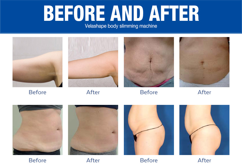 velashape machine good results