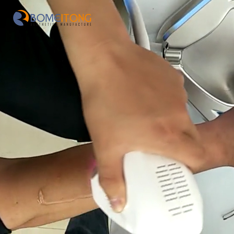 Permanent facial hair removal at home diode laser machine