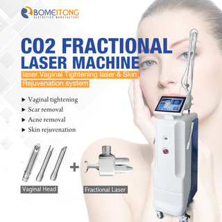 Fractional Co2 Laser System Equipment for Scar Removal